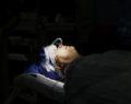 Γυναίκα «ξύπνησε» μετά από 27 χρόνια σε κώμα