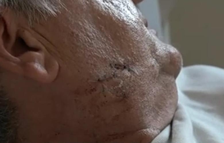 Επίθεση σκύλου σε ταχυδρόμο: «Ένιωθα να μου τρώει χέρια και πόδια»! (Βίντεο)