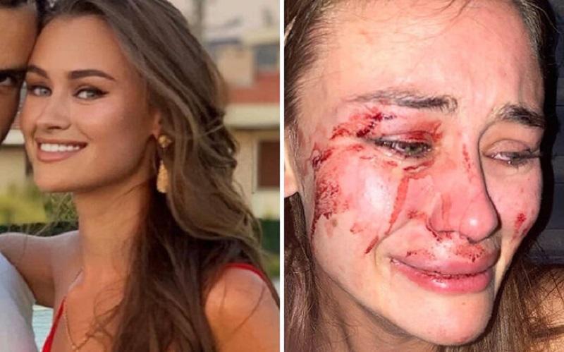 Το μοντέλο Daria Kirilyuk καταγγέλλει ότι ξυλοκοπήθηκε άγρια στην Τουρκία